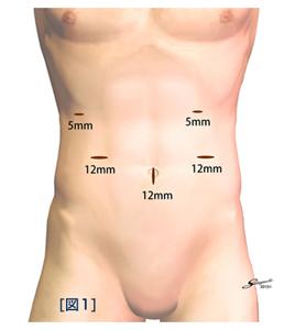腹腔鏡下手術とは