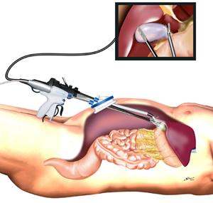 小さな傷の胆嚢の腹腔鏡下手術|...