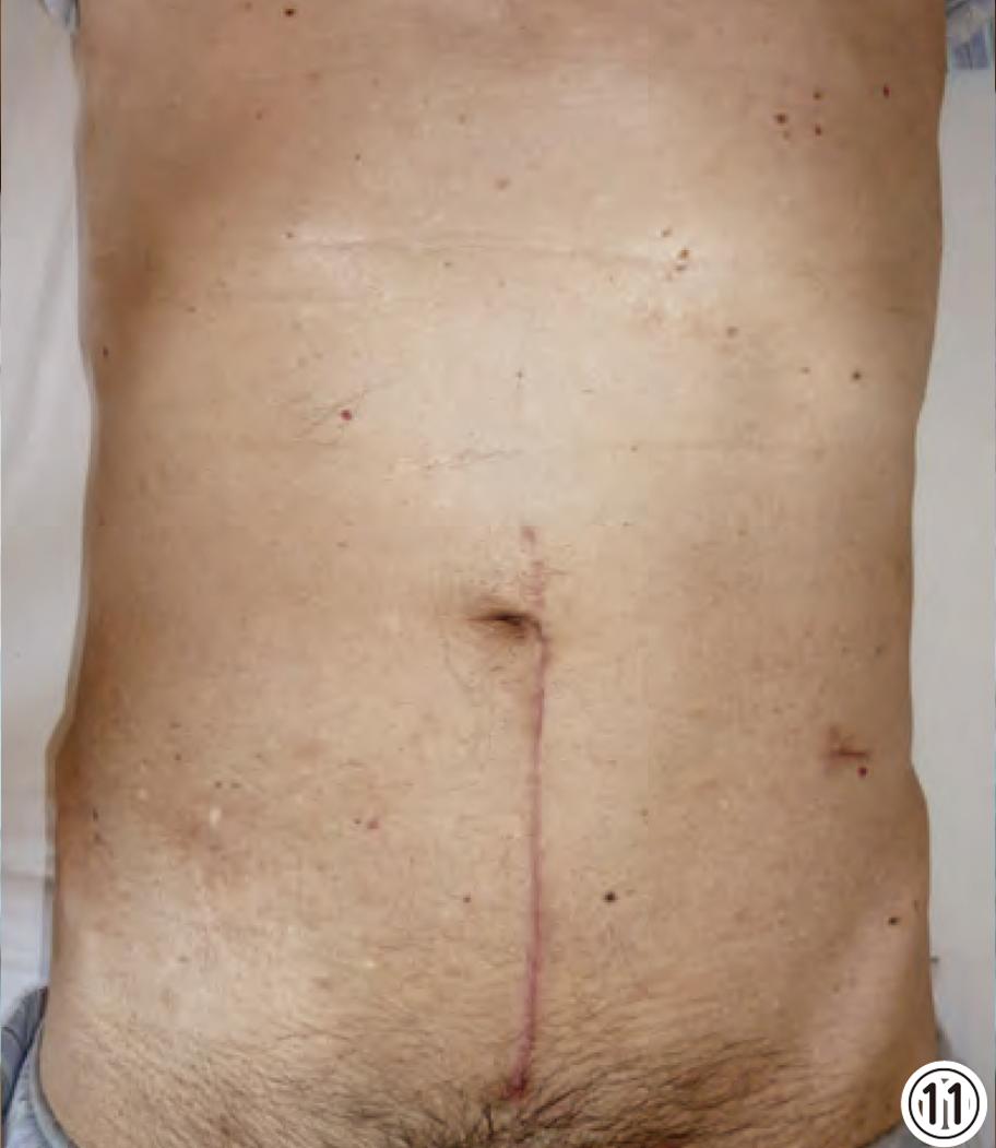 大腸の腹腔鏡手術|医療法人 山下病院