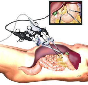 小さな傷の胃の腹腔鏡下手術|医...