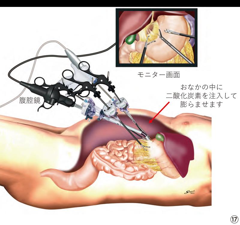 胃の腹腔鏡手術|医療法人 山下病院